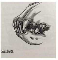 Saxbett
